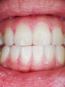 oil pulling oral health benefits