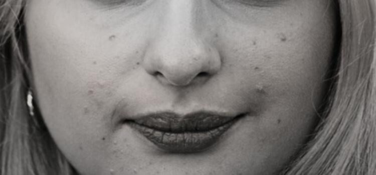 BHA For Acne